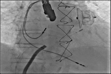 LAA closure with device in a thrombus-containing LAA (article in Italian)